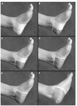Imagen 1. Vendaje calcáneo aplicado por Hyland et al. 6