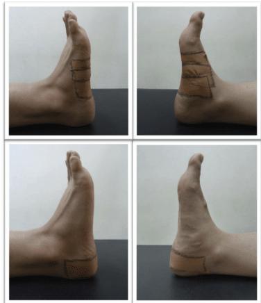 Vendaje control de pronación